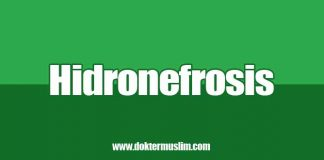 hidronefrosis
