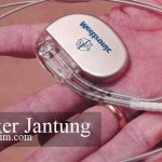 pacemaker jantung