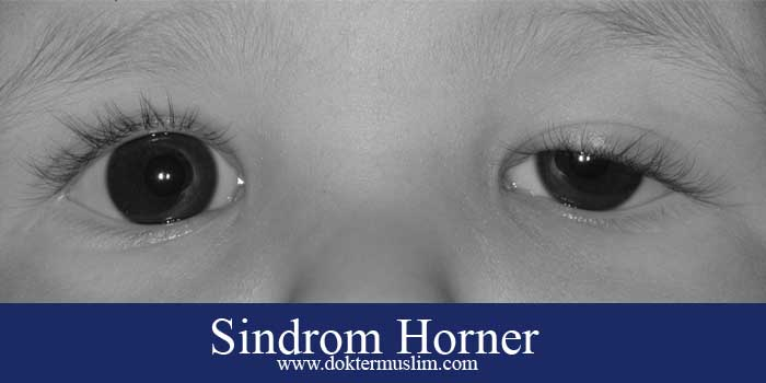 Sindrom Horner : Miosis, Ptosis dan Anhidrosis