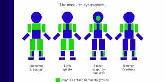 muscular dysthrophy